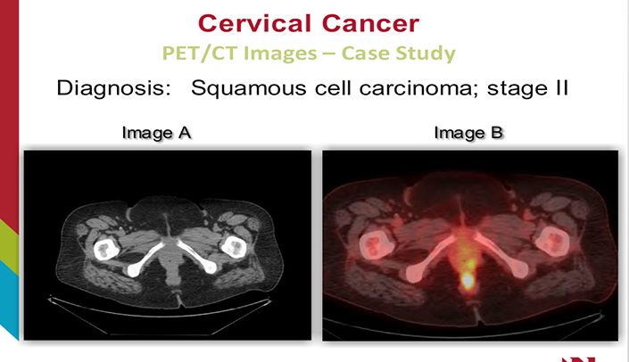 Cervical Cancer A Female Reproductive System Pathology Case Study
