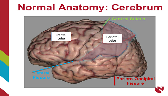 Anatomy Of The Brain E Gallery