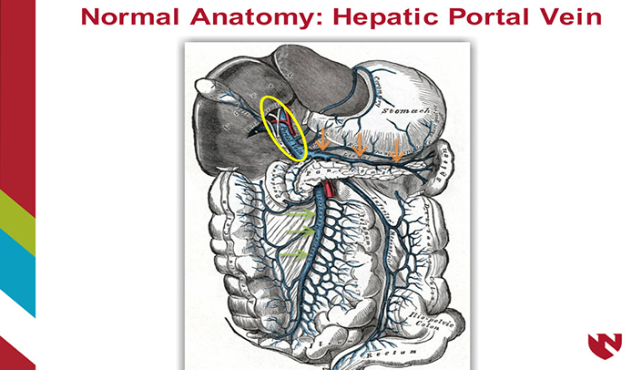 hepatic portal venous gas – E-Gallery