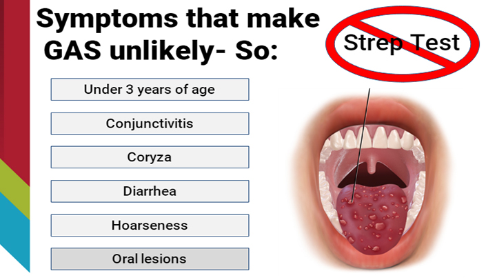 Strep Throat E Gallery